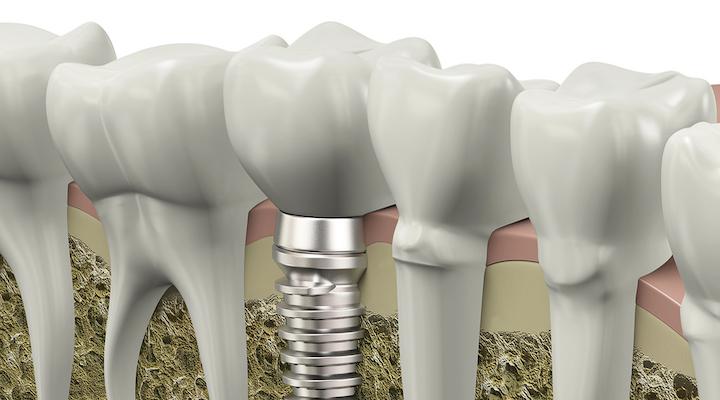 さくま歯科医院画像2