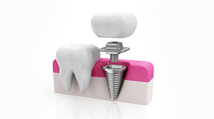 こまがみね歯科医院画像2
