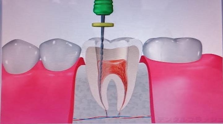 やまざき歯科クリニック画像3